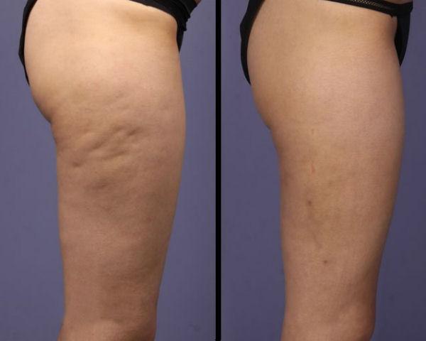 cellulite prima e dopo