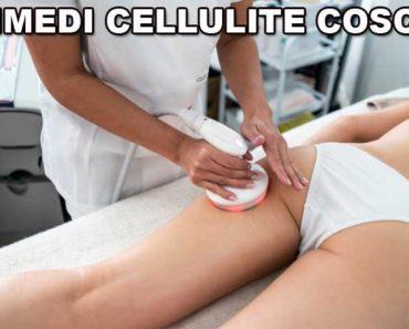 rimedi_cellulite_cosce