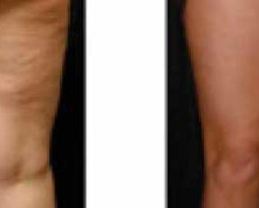 cellulite-ginocchia-prima-dopo