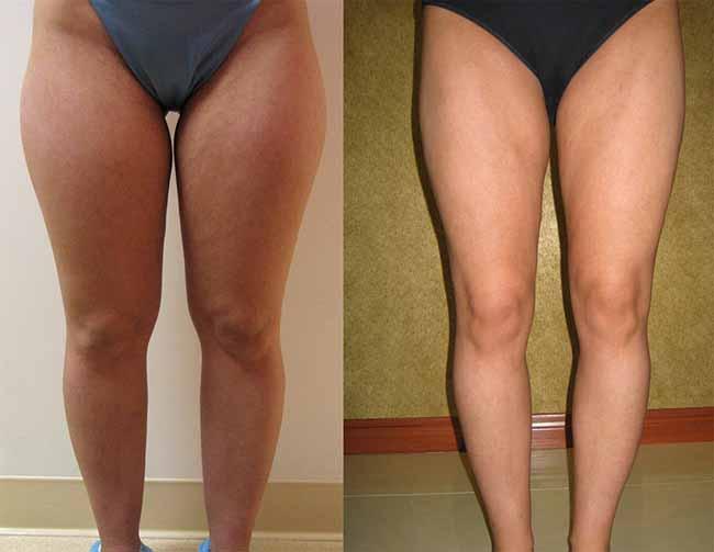 liposuzione gambe prima dopo