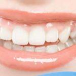 Sbiancare i Denti in modo Naturale ecco come fare