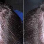 Prodotti ricrescita capelli Quelli che Funzionano