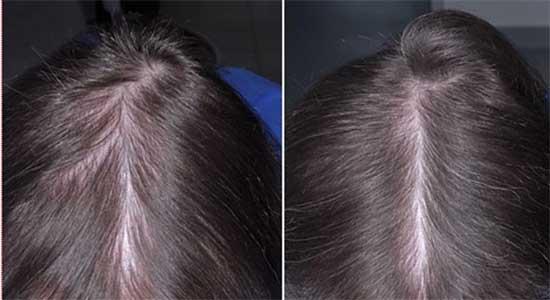 prodotti-ricrescita-capelli